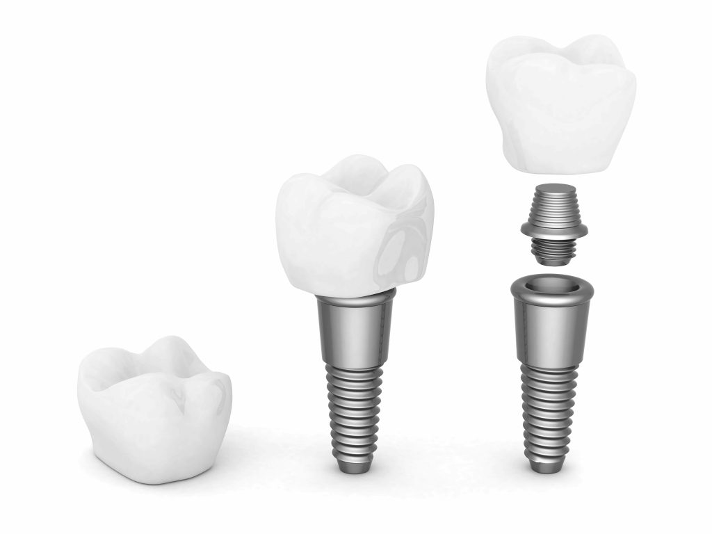 Pourquoi choisir un implant dentaire?