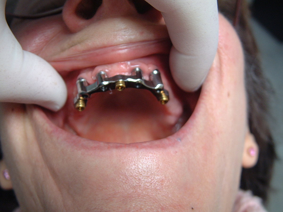 Implant dentaire Lyon : quelles sont les techniques utilisées ?