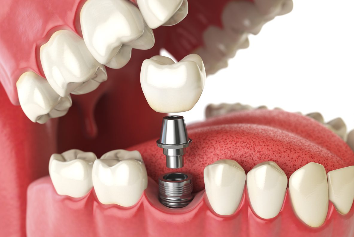 Implant dentaire : à quoi il sert ?